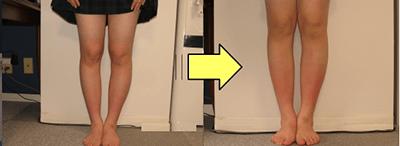 YBM O脚矯正の効果例