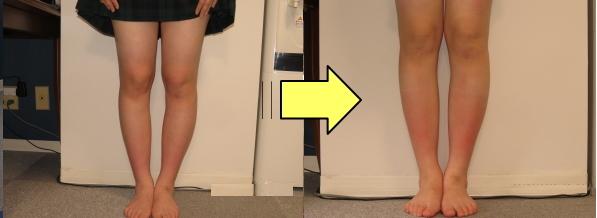 O脚矯正改善例2