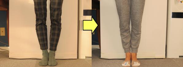 O脚矯正改善例3